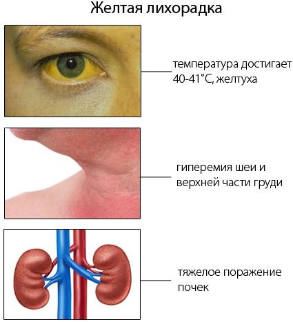 Прививка от желтой лихорадки. Где сделать, срок действия, противопоказания, побочные эффекты