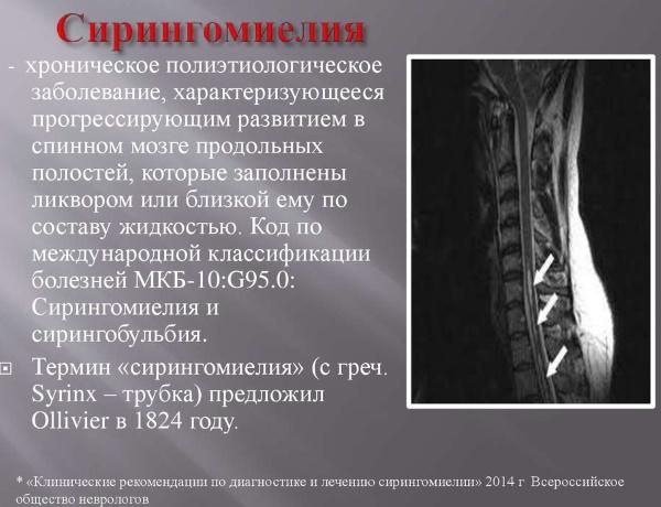 Санатории Саки с лечением опорно-двигательного аппарата и суставов. Цены, отзывы